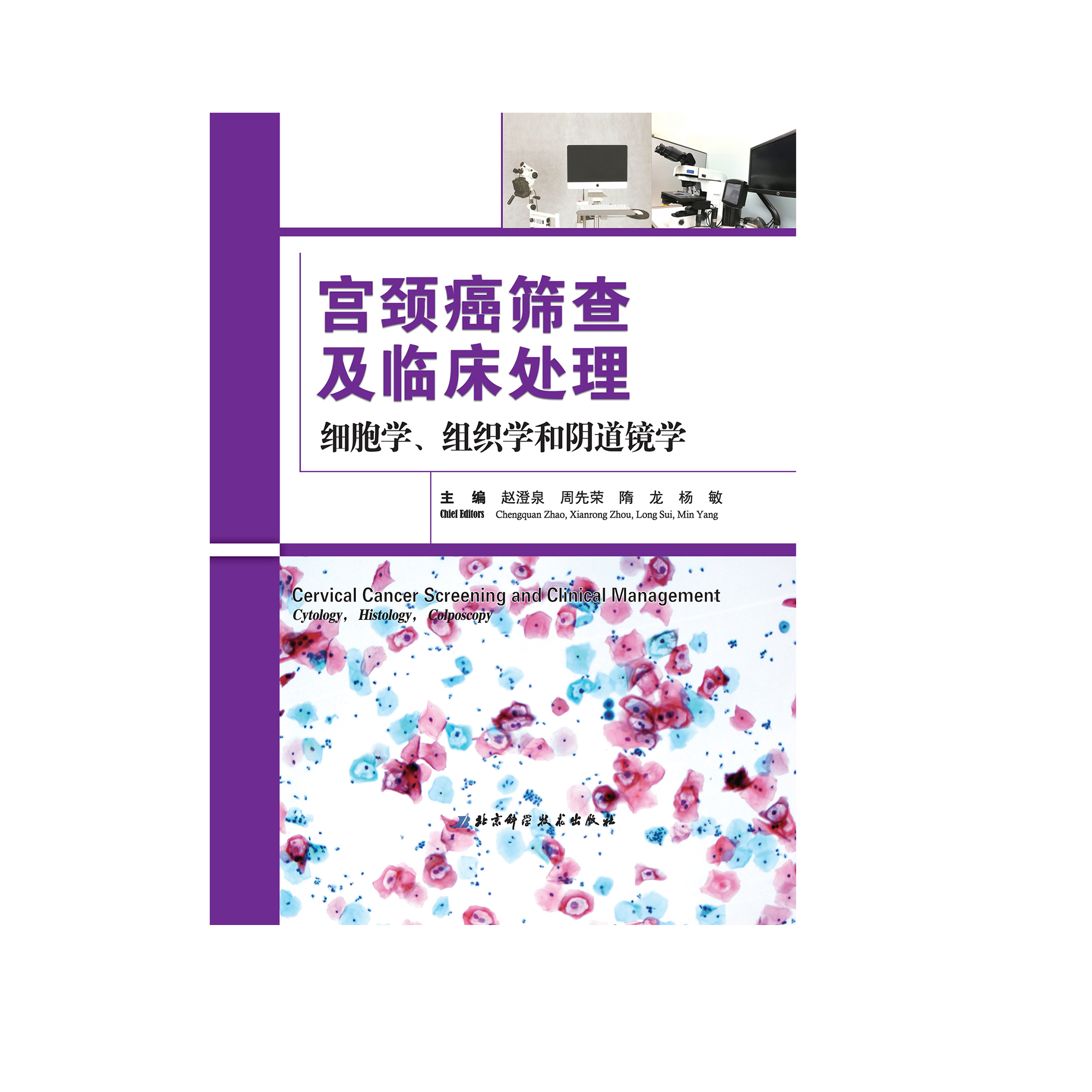 Cervical Cancer Screening and Clinical Treatment: Cytology, Histology and Colposcopy