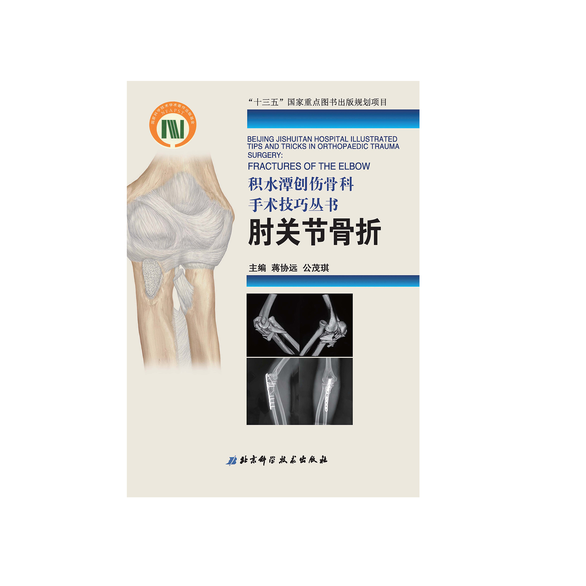 Beijing Jishuitan Hospital Trauma Orthopedic Surgery Techniques: Elbow Joint Fracture
